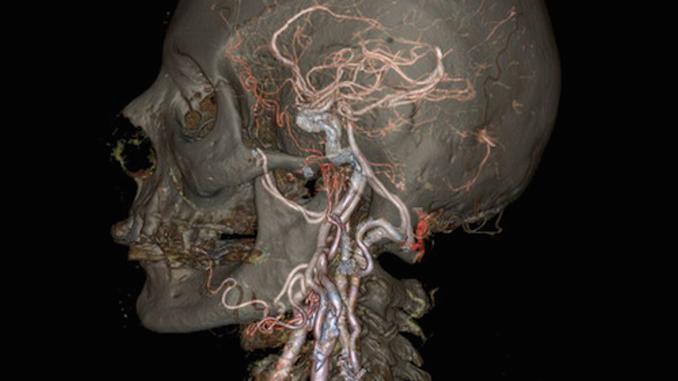 A New Generation of CT Scanners Turn Your Insides into Anatomical Art